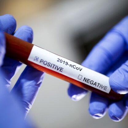 prueba rápida coronavirus