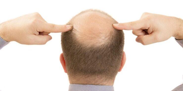 alopecia- calvicie- caida del cabello